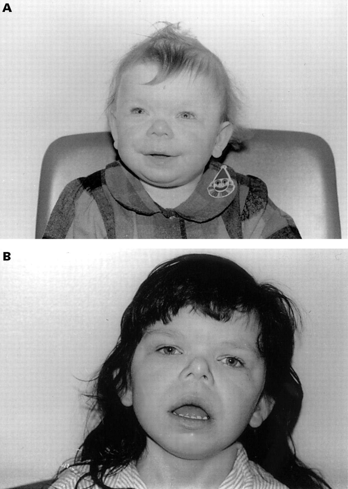 the medical description of williams syndrome Williams syndrome is a rare disorder that was first described in 1961  also known as williams-beuren syndrome,  medical history.