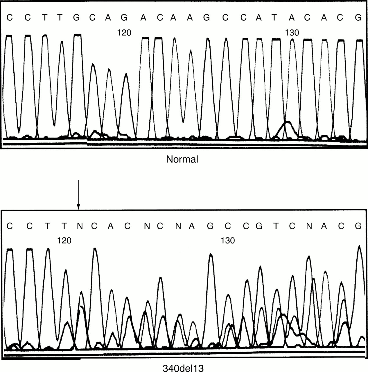 Identification of three novel frameshift mutations in patients with ...