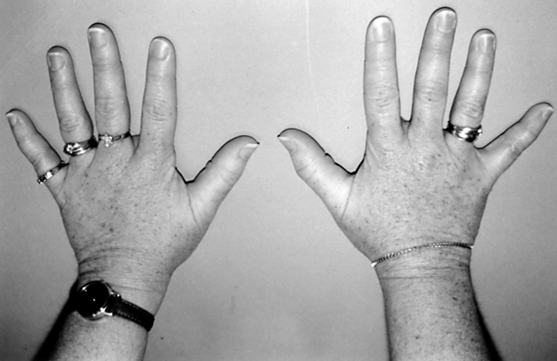 Clinical And Radiological Assessment Of A Family With Mild Brachydactyly Type A1 The Usefulness Of Metacarpophalangeal Profiles Journal Of Medical Genetics