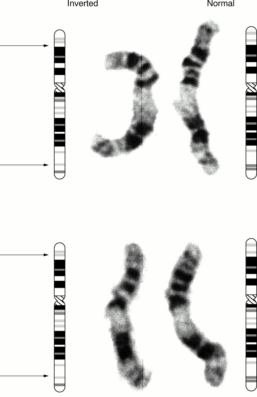 chromosome 11 General discussion partial monosomy 11q, also known as jacobsen syndrome, is a rare chromosomal disorder in which a portion of chromosome 11 is missing or deleted 11q.