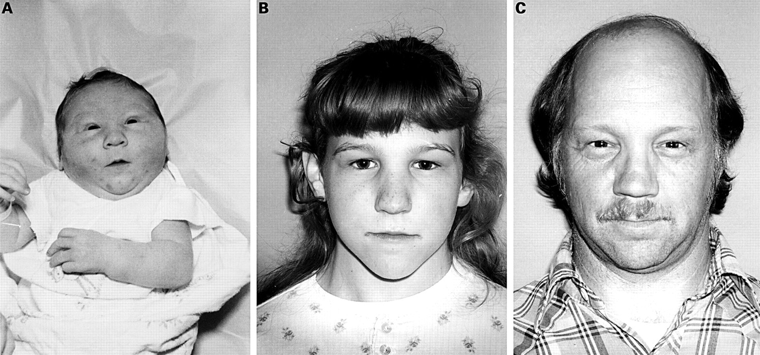 distal arthrogryposis  a new type with distinct facial