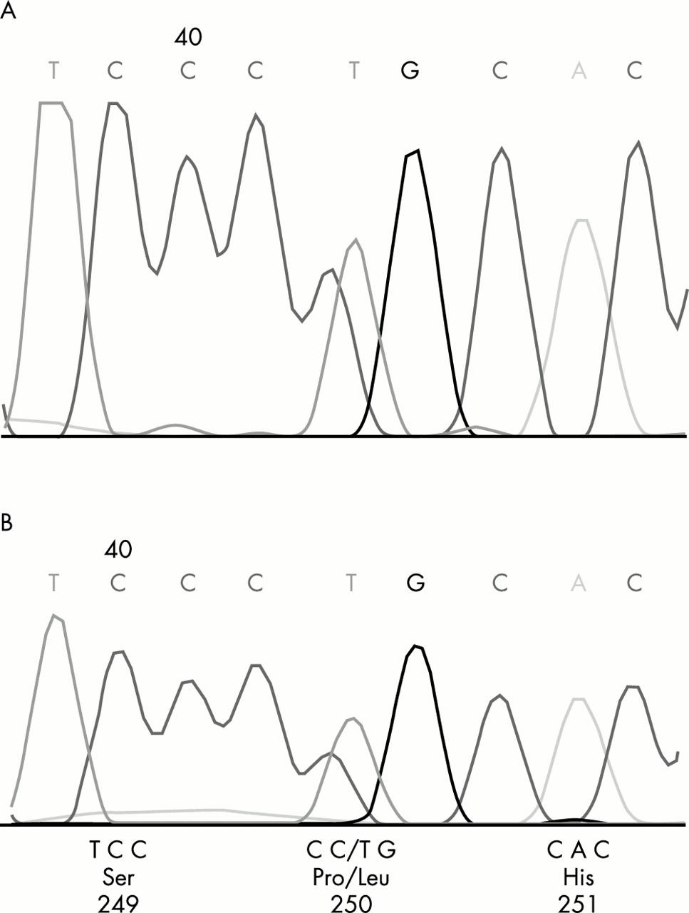 Heterozygous P250L mutation of fibroblast growth factor