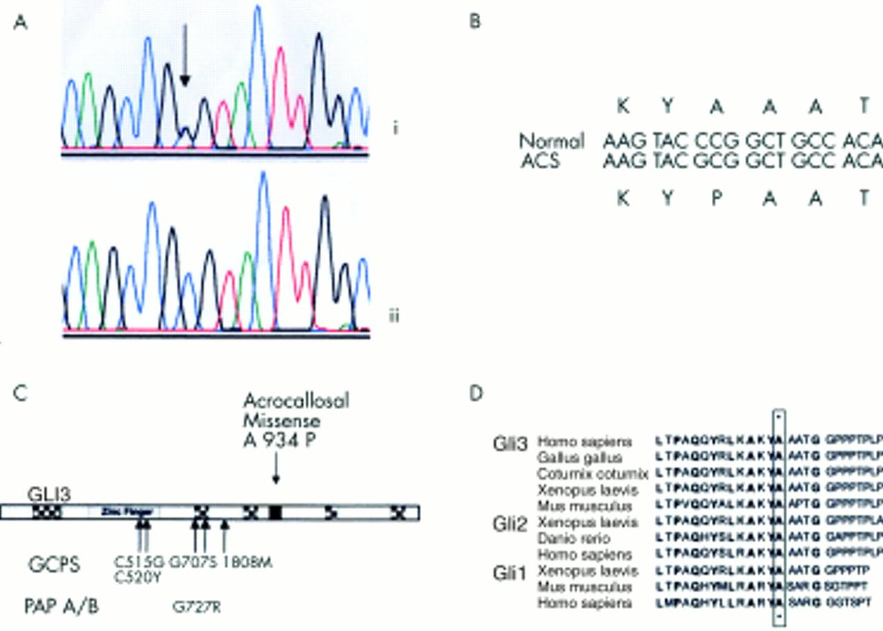 De novo GLI3 mutation in acrocallosal syndrome: broadening ...