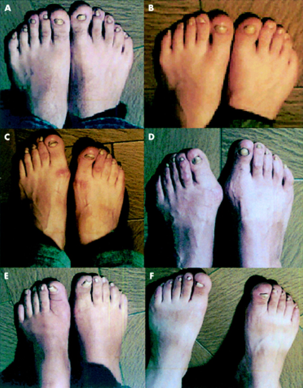 Familial chronic nail candidiasis with ICAM-1 deficiency: a new form ...