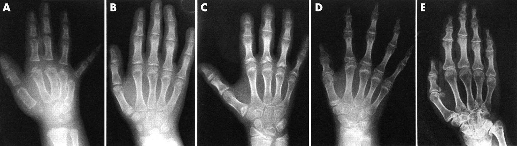 Recessive multiple epiphyseal dysplasia (rMED): phenotype delineation ...