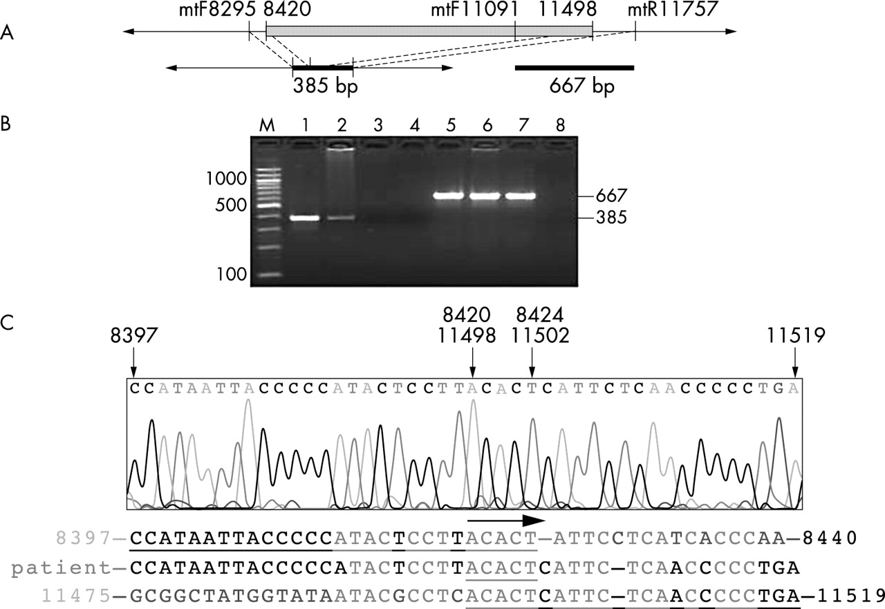 compensatory amplification of mtdna in a patient with a