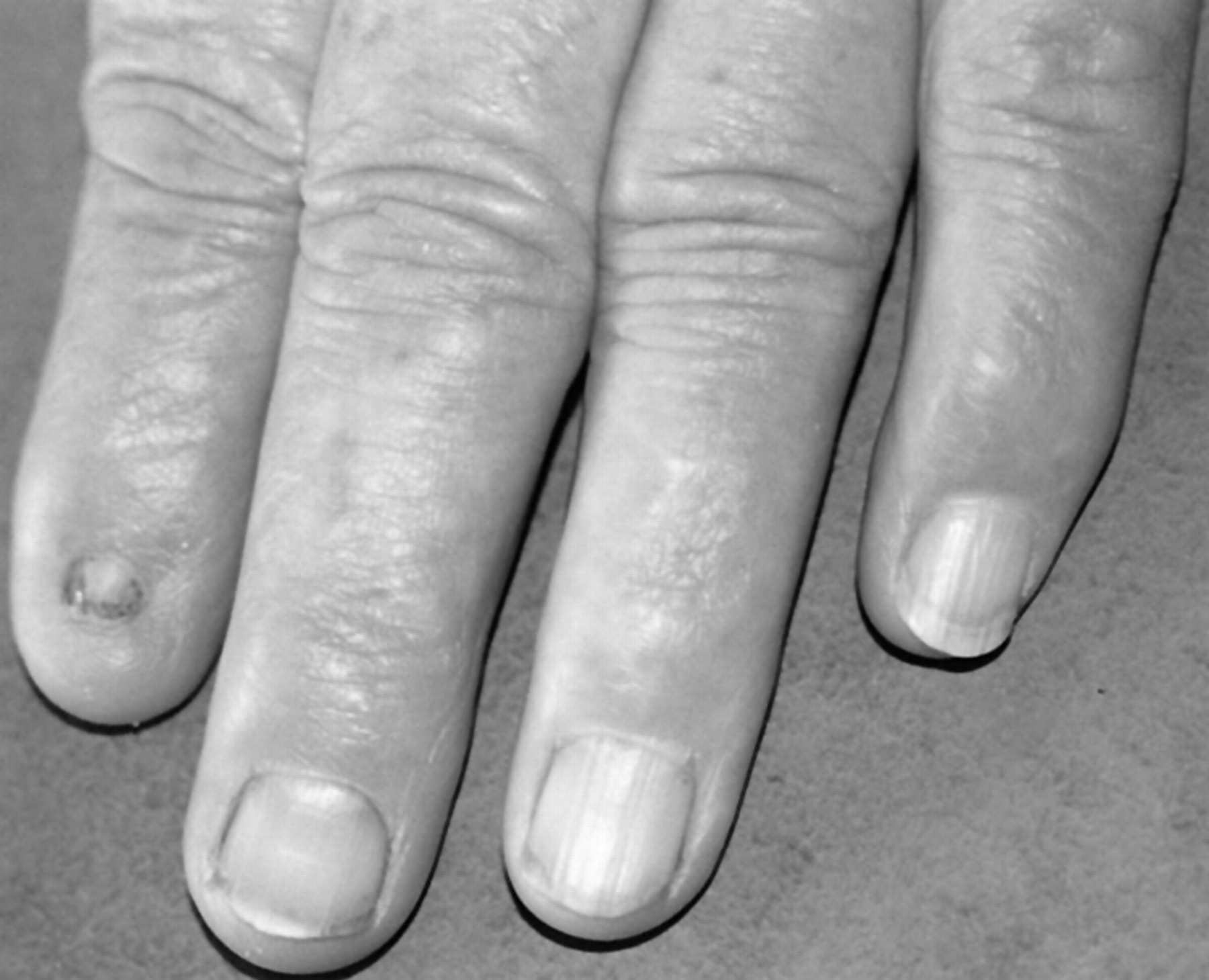 Nail patella syndrome: a review of the phenotype aided by ...