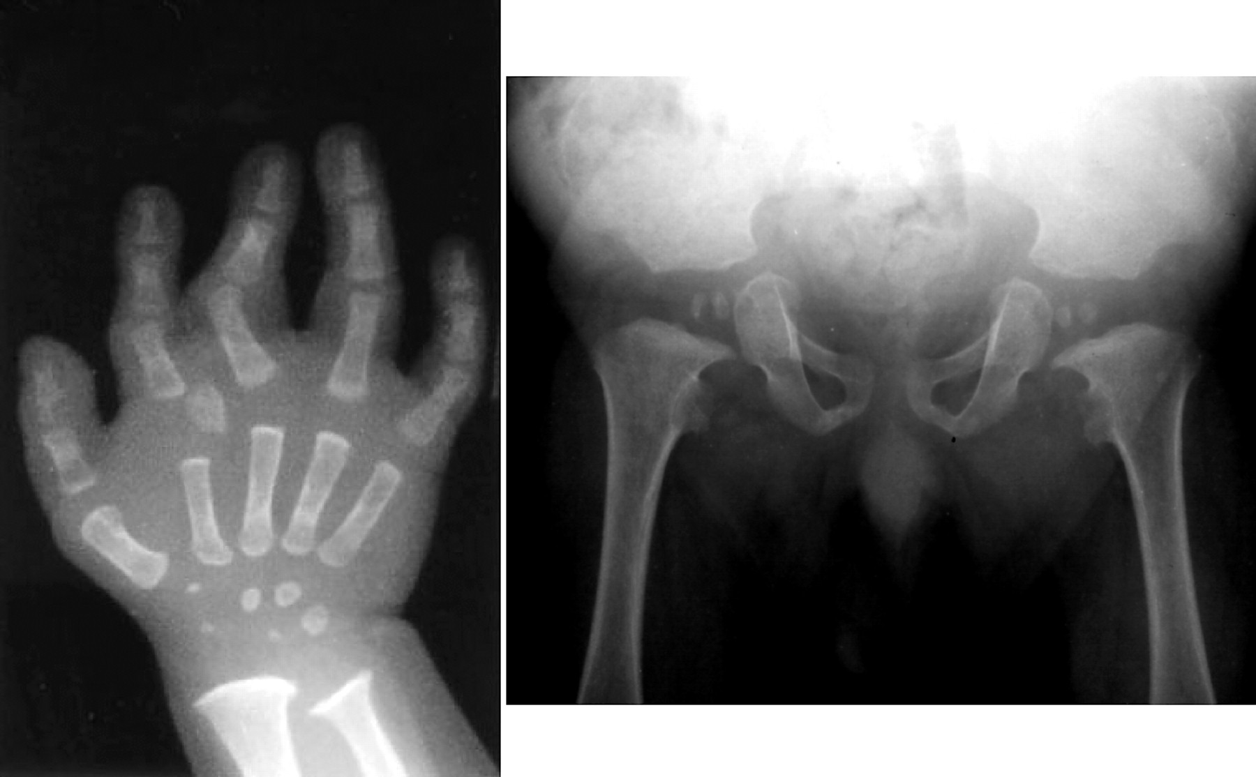 case study spina bifida adolescent female