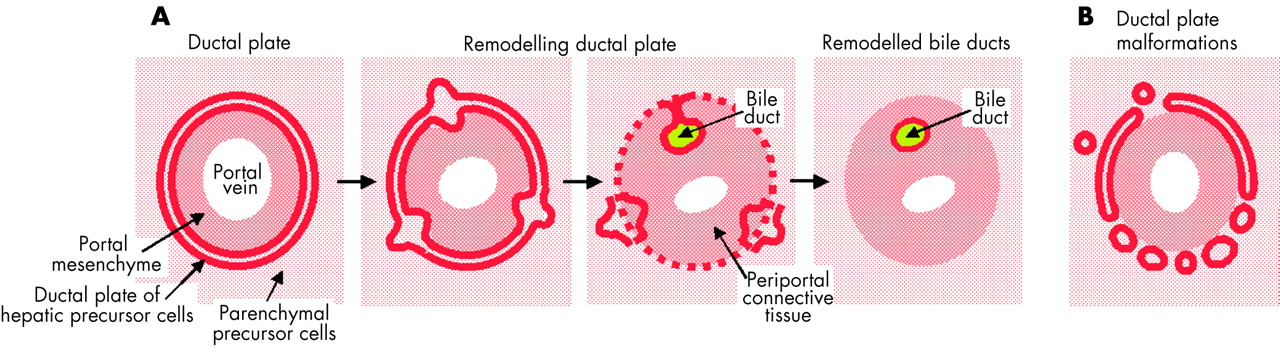 the ductal plate stage