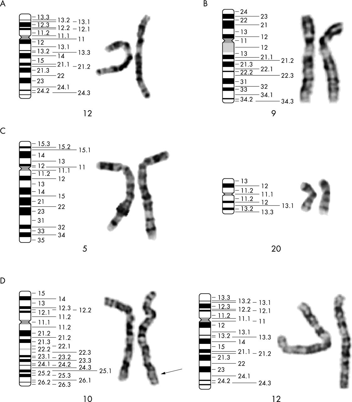 Subtelomere specific microarray based comparative genomic