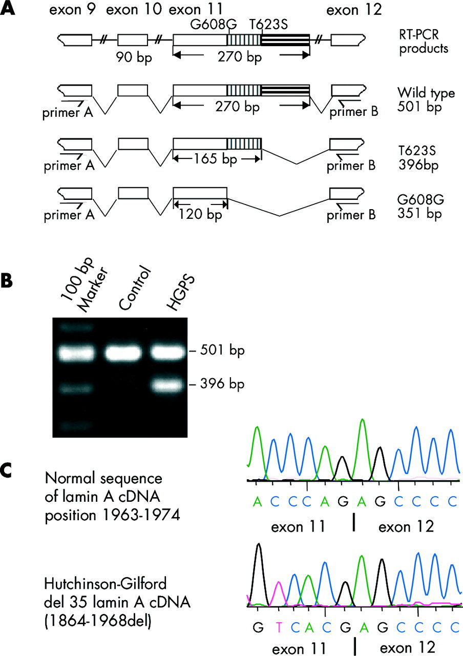 Lmna Mutation In A 45 Year Old Japanese Subject With