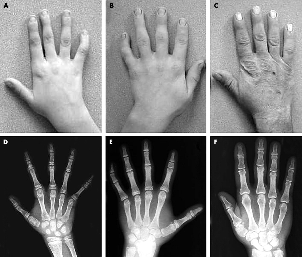 Angel Shaped Phalangeal Dysplasia Hip And Positional The Root Of Middle Finger On Index Bone See Diagram Download Figure Open In New Tab