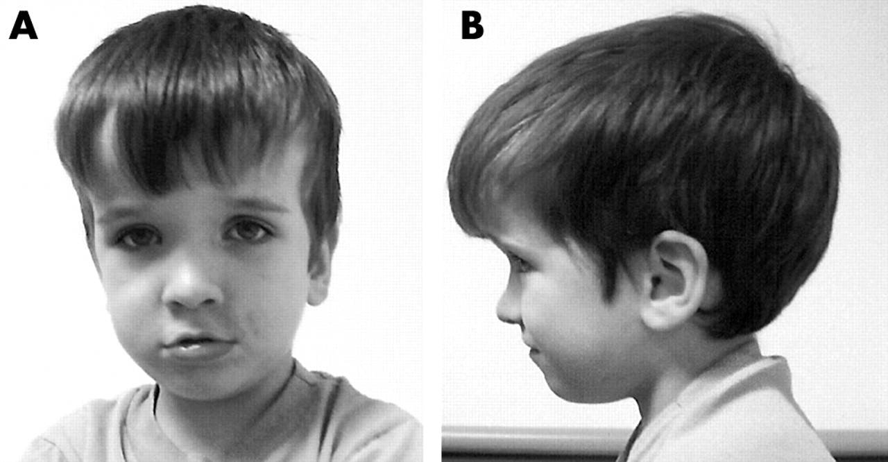 subset of individuals with autism spectrum disorders and extreme, Skeleton