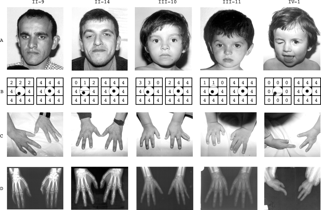 A new syndrome, congenital extraocular muscle fibrosis with ulnar