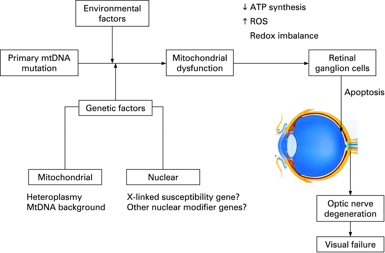 Inherited mitochondrial optic neuropathies | Journal of