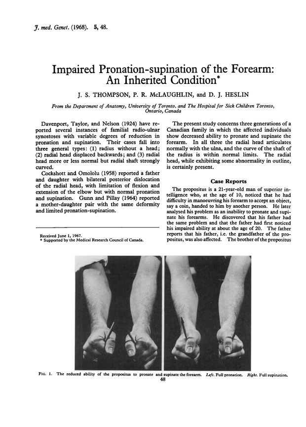 Impaired Pronation Supination Of The Forearm An Inherited Condition