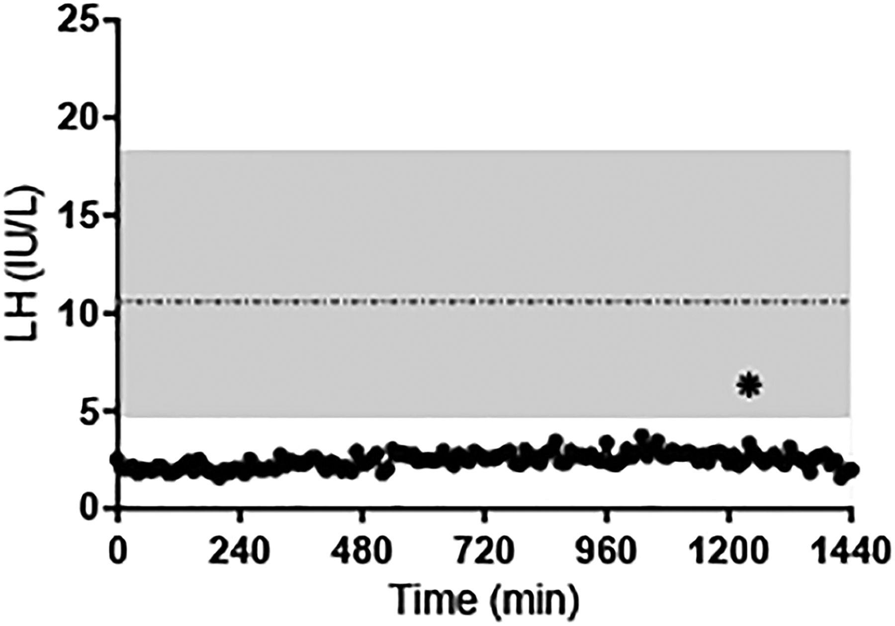 Phenotypic spectrum of POLR3B mutations: isolated ...