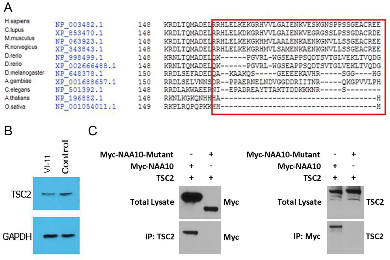 A Splice Donor Mutation In Naa10 Results The Dysregulation Of Amino 2000 150 Tabs Download Figure Open New Tab